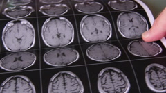 Doctor is looking at MRI images Stock Footage