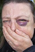 woman aged 45 with a black eye, haematoma, bruise, effusion of blood around t - stock photo