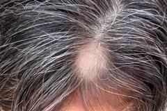Loss of hair , alopecia Stock Photos
