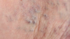 Varicose veins on leg old skin with edema illness  - stock footage