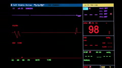 Ecg monitor patient's condition in operating room - stock footage