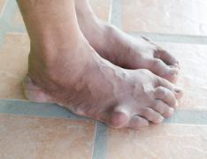 foot of gout patient - stock photo