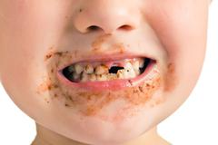 Child with a dirty mouth and missing tooth Stock Photos