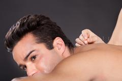 Man getting acupuncture treatment Stock Photos