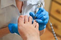 chiropody - stock photo