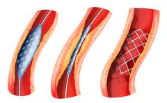 Stent used to open blocked artery - stock illustration