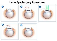 Laser Eye Surgery Procedure Stock Illustration