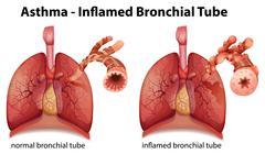Asthma Stock Illustration