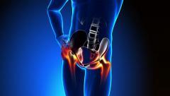 Hip Bone - Pain in Hip Bone - Hurt Hip Bone Stock Footage