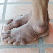 Foot of gout patient Stock Photos