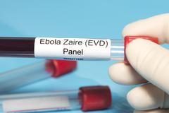Ebola lab panel Kuvituskuvat