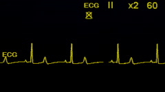 4K EKG Monitor Displays Rising Patient Heartbeat Stock Footage