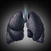 human lung disease - stock illustration