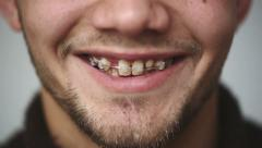 SLOW MOTION: Close up of a beautiful male face. Man showing braces on teeth Stock Footage