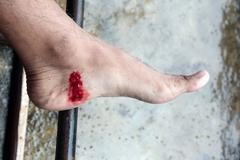 incised wound on human foot, tropical leech bite in asian rainforest. - stock photo