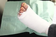 Diabetic man with foot infections Stock Photos