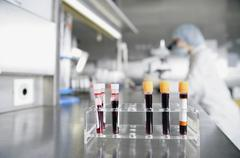 Front view of test tubes containing blood samples Stock Photos