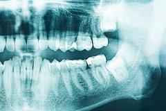 Panoramic Dental X-Ray Stock Photos
