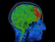 Mri image of head showing brain Stock Illustration