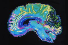 Mri image brain on black background Stock Illustration