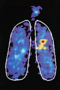 graphic image showing disease in human lung - stock illustration