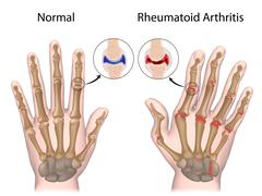 Rheumatoid arthritis of hand Stock Illustration