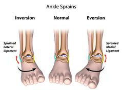 Stock Illustration of Types of ankle sprains