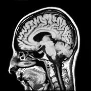 Vertical section of human brain MRI scan Stock Photos