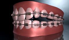 creepy teeth with braces - stock illustration
