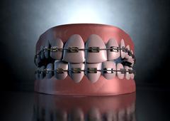 Creepy teeth with braces Stock Illustration