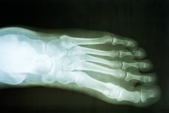 Human Foot X-Ray - stock photo