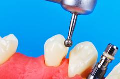 drill and dental implant - stock photo