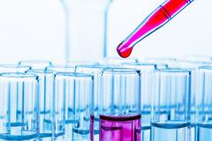 Laboratory glassware in laboratory in chemistry lab Stock Photos