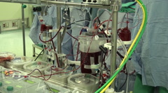 Heart-lung machine. Extracorporeal circulation unit Stock Footage