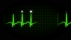 EKG Monitor Screen Stock Footage
