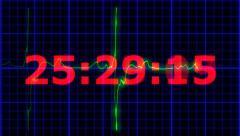 EKG heartbeat Countdown 30 seconds Stock Footage