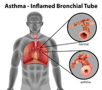 Asthma-inflamed bronchial tube Stock Illustration