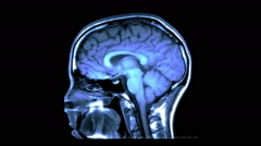 MRI Scan of the Brain - Side to Side Stock Footage