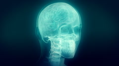 X-ray of human head. Clip C. Loop. - stock footage