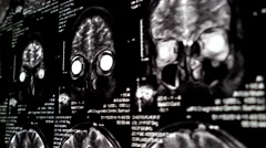 Computed tomography in motion Stock Footage