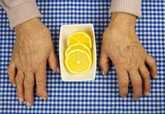 rheumatoid arthritis hands - stock photo