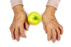 rheumatoid arthritis hands and fruits - stock photo