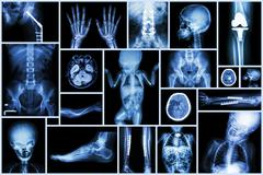 collection x-ray multiple adult and child's organ & orthopedic surgery & mult - stock photo