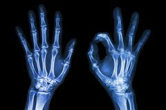x-ray both hands with ok sign - stock photo