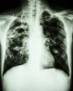 mycobacterium tuberculosis infection (pulmonary tuberculosis) - stock photo