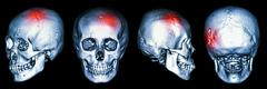 Ct scan of human skull and 3d with stroke (cerebrovascular accident) Stock Photos
