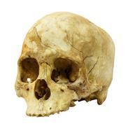 Human skull fracture(side) (mongoloid,asian) on isolated background Stock Photos