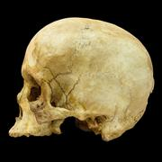 Human skull fracture (side)  (mongoloid,asian) on isolated background Stock Photos
