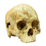 Human skull fracture(side) (mongoloid,asian) on isolated backgro Stock Photos