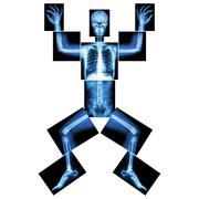 jigsaw human x-ray ( whole body : head skull face neck spine shoulder arm elb - stock photo